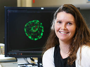 Dr. Natalie Gassman, assistant professor of oncologic sciences, poses near an image of a cancer cell in the Advanced Microscopy Imaging Suite at the USA Mitchell Cancer Institute on Tuesday, Nov. 10, 2015, in Mobile, Ala. Gassman's work focuses on DNA damage and repair. She joined MCI in July. (Mike Kittrell)